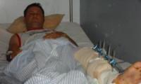 Radialista Erismar Leite está de volta a Valença após acidente.
